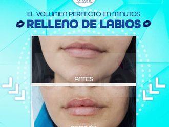 Aumento de labios-739437