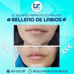 Aumento de labios - B+ Care