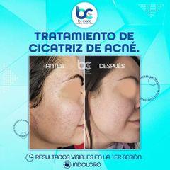Tratamiento antiacné - B+ Care