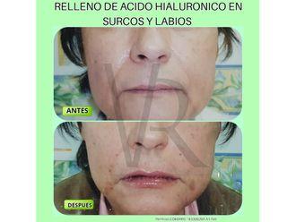 Ácido hialurónico-632750