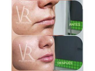 Aumento de labios - 642849