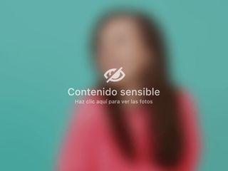 Liposucción - Rosa María Guerrero Campos
