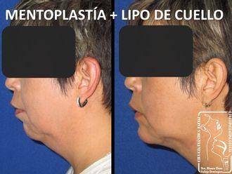 Cirugía de papada-647027