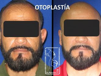 Otoplastia-647031