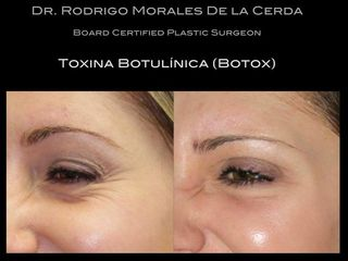 Antes y despues de botox