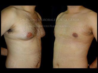Cirugía ginecomastia - 641885