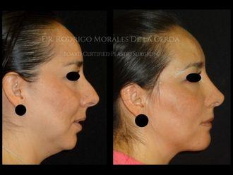 Cirugía de papada - 641888
