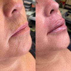 Aumento de labios - Ginecoestetica MTY