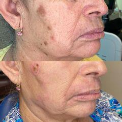Manchas en la piel - Ginecoestetica MTY