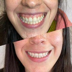 Sonrisa gingival - Ginecoestetica MTY