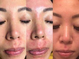 Tratamientos faciales - 633510