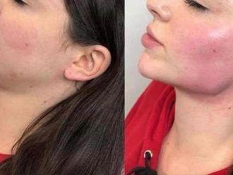 Tratamientos faciales - 633511
