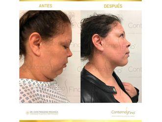 Cirugía de papada-626665
