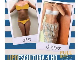 Lipoescultura - 644195
