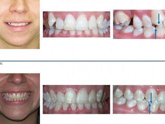 Ortodoncia - 569392