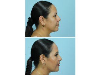 Cirugía facial-556479