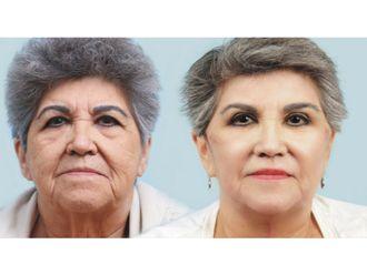 Rejuvenecimiento facial-575710