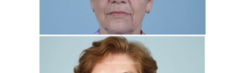 Rejuvenecimiento Facial