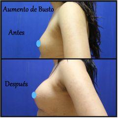 Dr. Humberto Osnaya Moreno - Aumento de busto