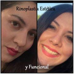 Dr. Humberto Osnaya Moreno - Rinoplastía estética y funcional
