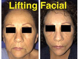 Rejuvenecimiento facial-638919