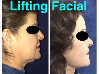Rejuvenecimiento facial-638923