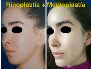 Rinoplastía + Mentoplastía