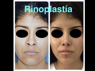 Rinoplastía.