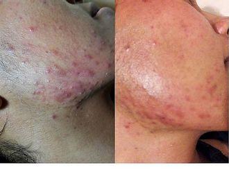 Tratamiento antiacné-591959