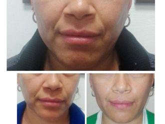 Rejuvenecimiento facial-626946