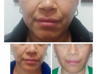 Rejuvenecimiento facial trifase
