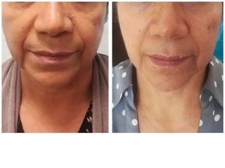 Rejuvenecimiento facial con técnica Astrea