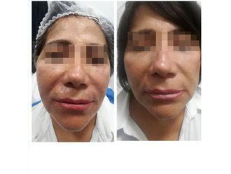 Rejuvenecimiento facial-640114