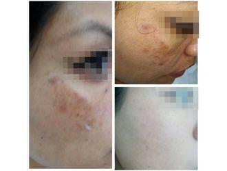 Tratamiento antiacné - 640116