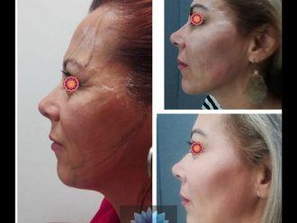 Rejuvenecimiento facial - 644023
