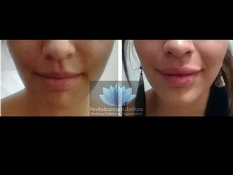 Aumento de labios - 644024