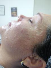 Rejuvenecimiento facial - Dra. Liliana Pérez.