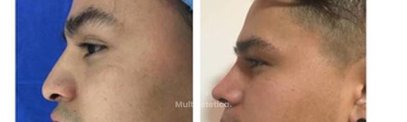 Deformidad nasal postraumatica