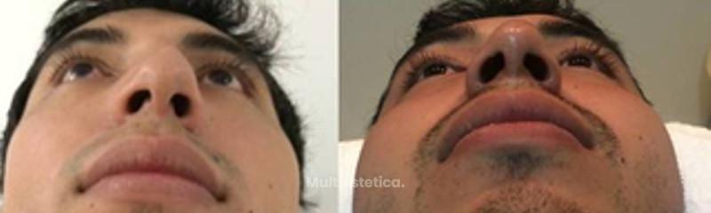 Rinoseptoplastia, alineación de pirámide y punta nasal