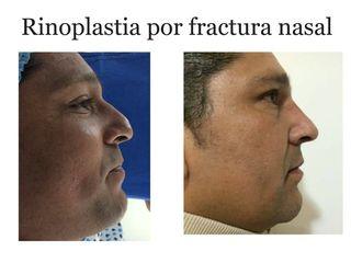 rinoplastia por fractura nasal 0