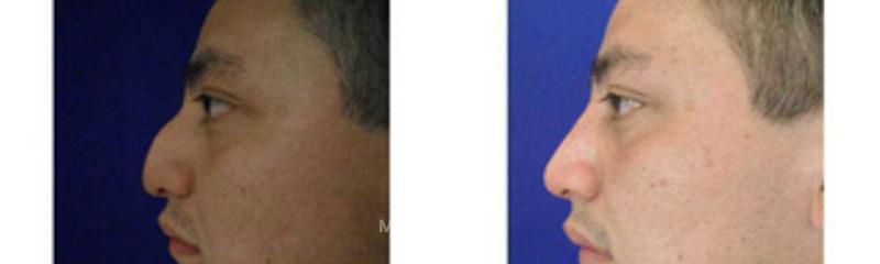 rinoplastia (resultados a 8 meses)