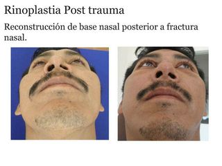 rinoplastia post trauma 1