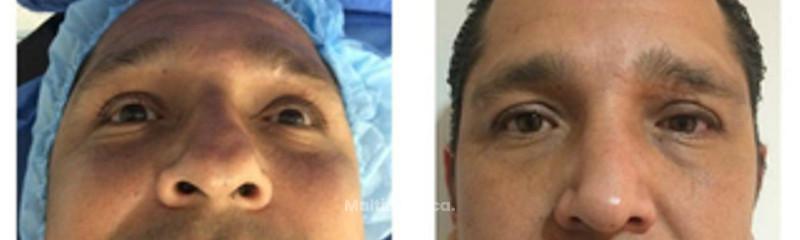 rinoplastia por fractura nasal