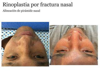 rinoplastia por fractura nasal 1