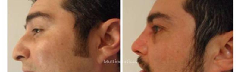 Rinoplastia evolución 12 meses