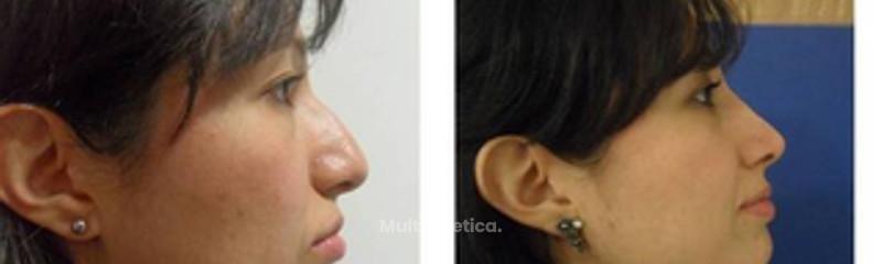 Rinoplastia (acortamiento nasal)