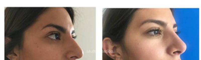 Rinoplastia (acortamiento nasal )