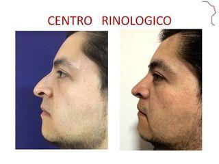 Rinoplastia postraumatica
