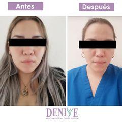Bolsas de bichat - Clínica Denisse