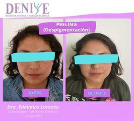 Peeling - Clínica Denisse